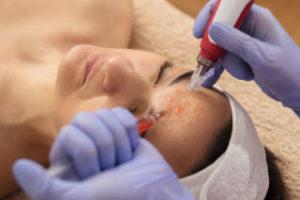 Kombinovani tretmani lica