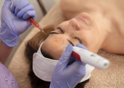 Kozmetički salon Voždovac - Mezoterapija dermapenom